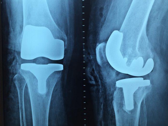 Interpretare vis in care apare radiografie